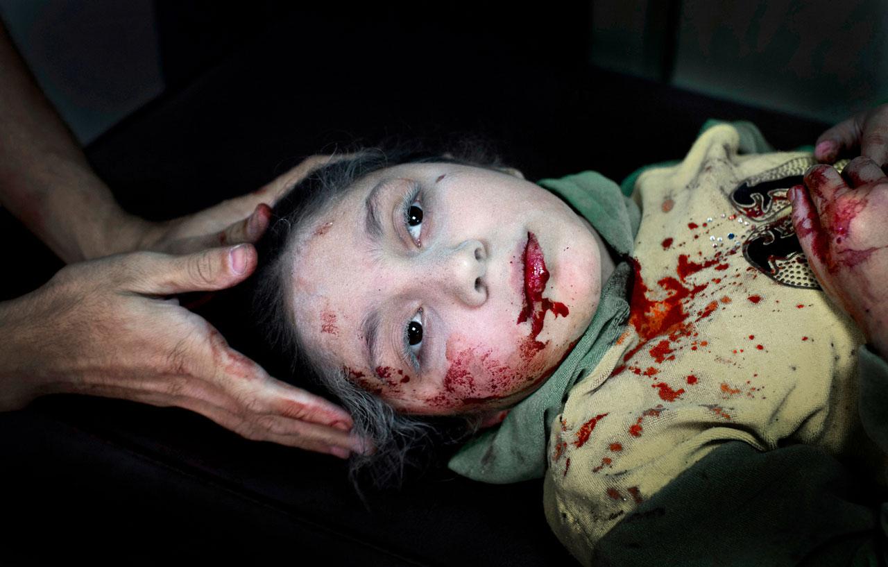 Die elfjährige Dania in einem Krankenhaus im umkämpften Aleppo. Sie wurde beim Spielen auf der Straße von Granatsplittern getroffen.
