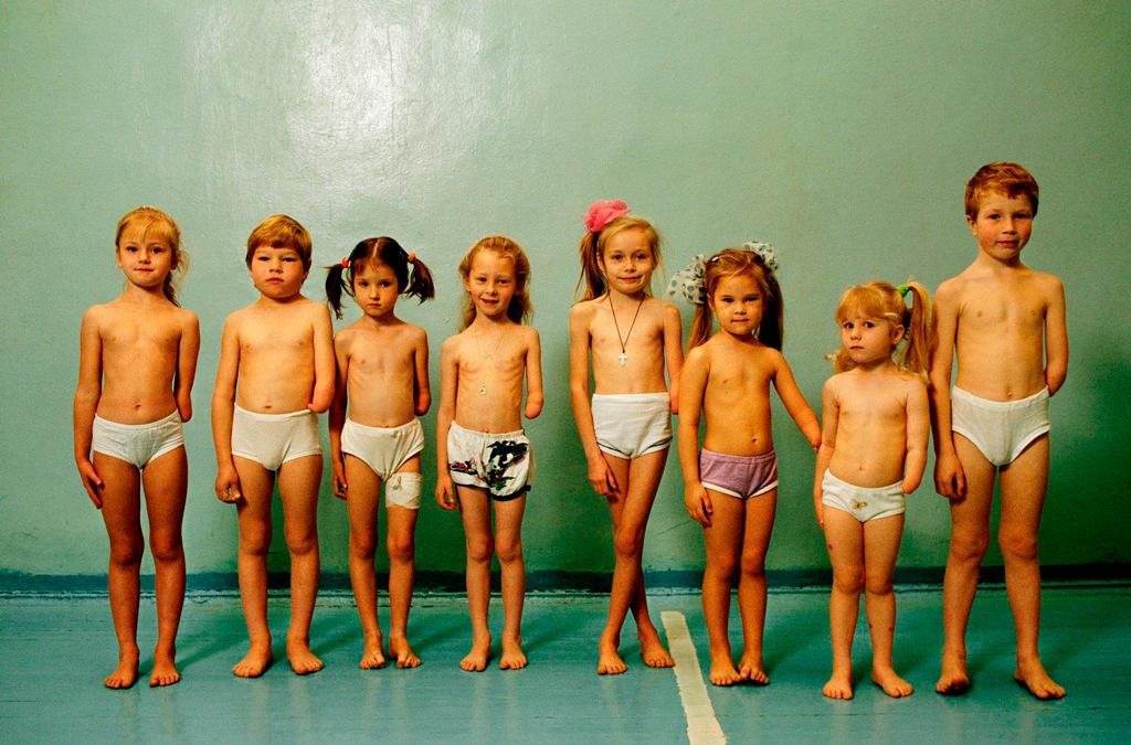 Eine unerklärliche Tragödie: Diese Kinder, die aus zwei Bezirken in Moskau stammen, wurden alle mit einem fehlenden Unterarm geboren. Während Russlands Mediziner sich uneins sind, führt die Mehrheit der Mütter die Missbildungen auf Moskaus unvorstellbare Mischung von Umweltgiften zurück. [Moskau, Russland 1993]. Foto: Gerd Ludwig