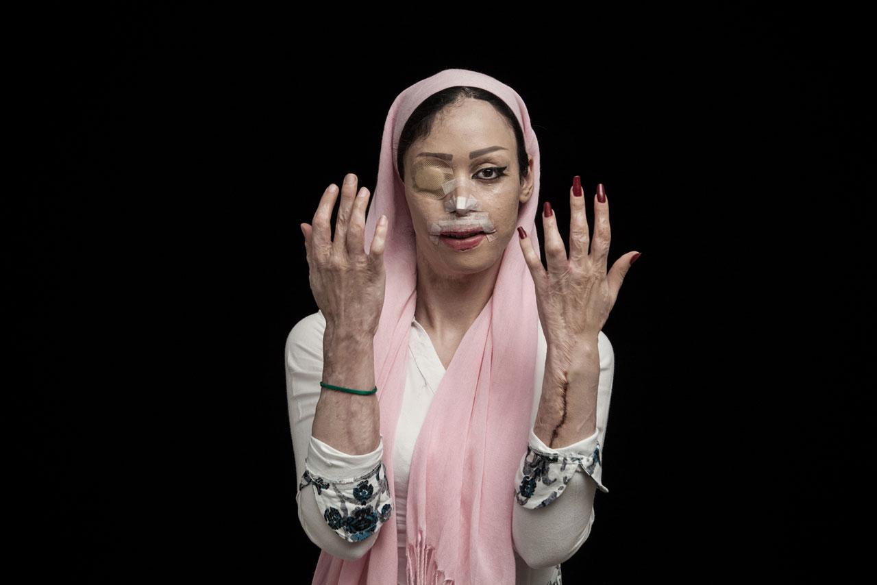 Für seine Serie »Fire of Hatred« wurde der iranische Fotograf Asghar Khamseh in diesem Jahr als »L'iris d'Or Photographer of the Year« ausgezeichnet. Foto: Asghar Khamseh